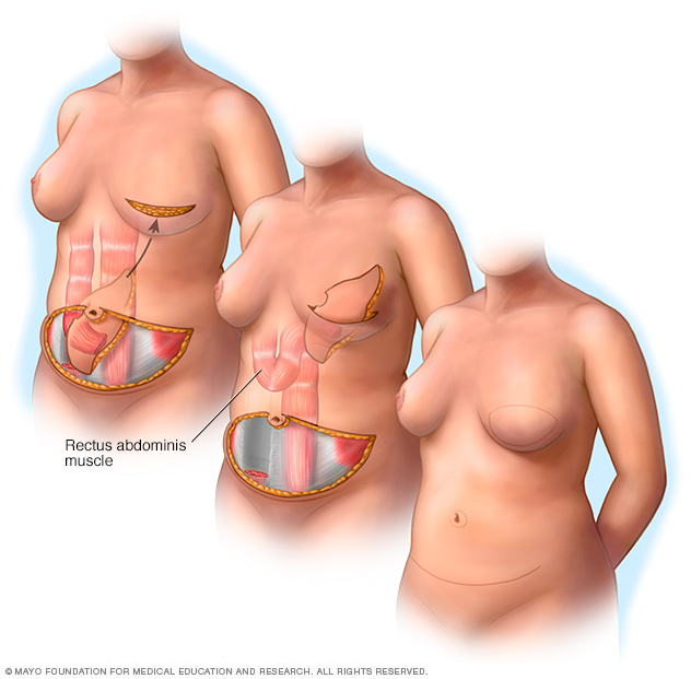 Illustration showing a pedicle TRAM flap procedure