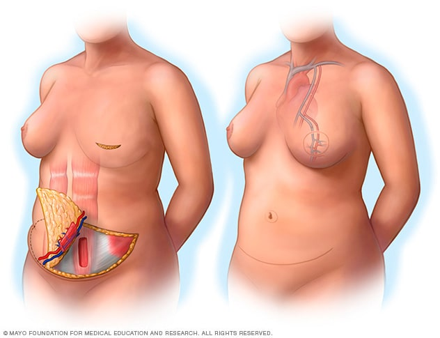 Illustration showing a free TRAM flap procedure
