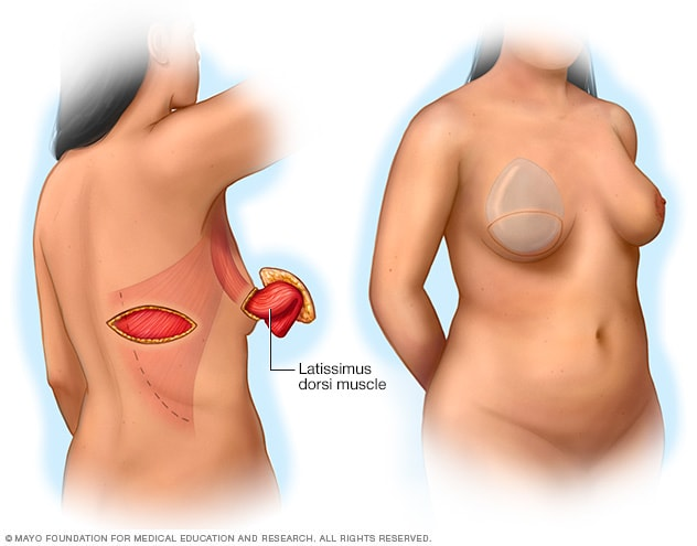 Illustration showing a pedicle latissimus dorsi flap procedure
