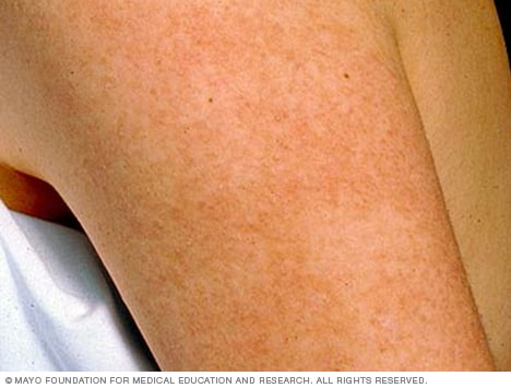 Keratosis pilaris - Symptoms and causes - Mayo Clinic