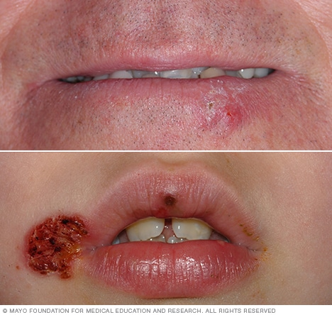Cold Sore Symptoms And Causes Mayo Clinic