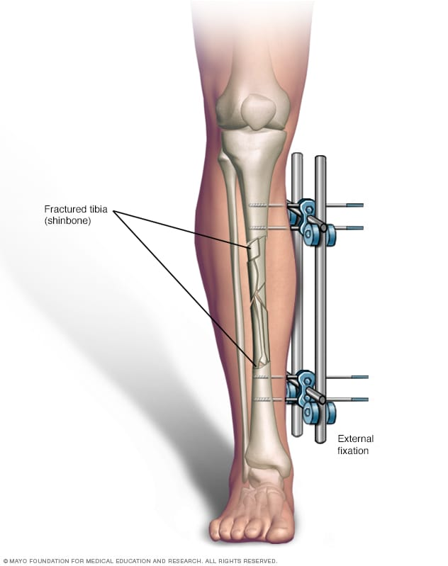Illustration of broken leg with external fixation