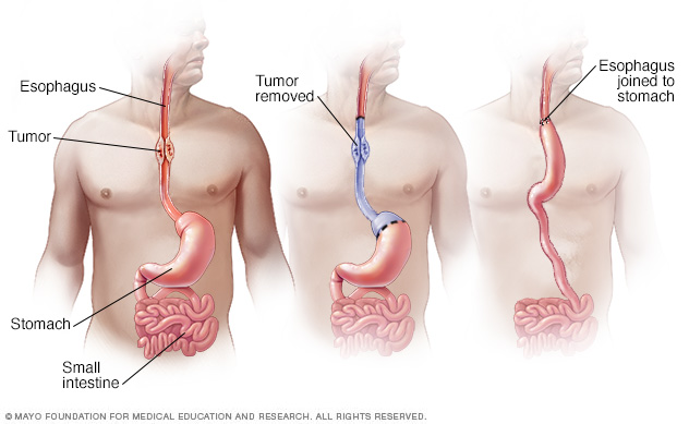 Esophageal cancer surgery