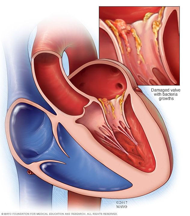 Effects of endocarditis on the heart