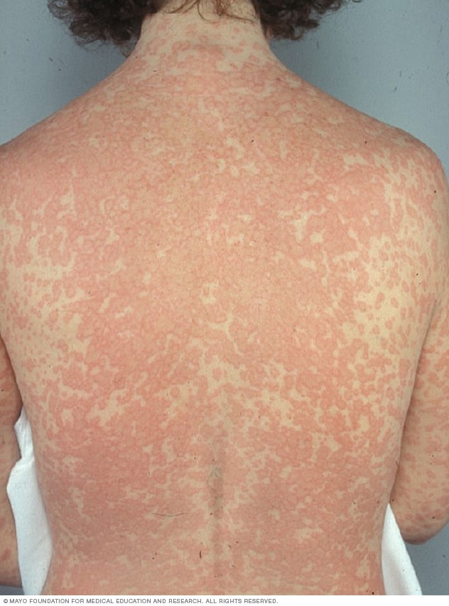 Rash caused by drug allergy