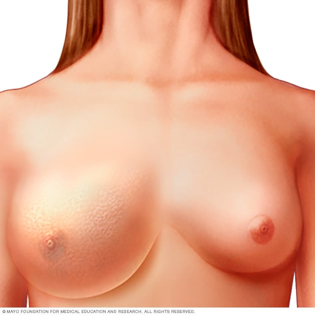 Photograph of woman with inflammatory breast cancer