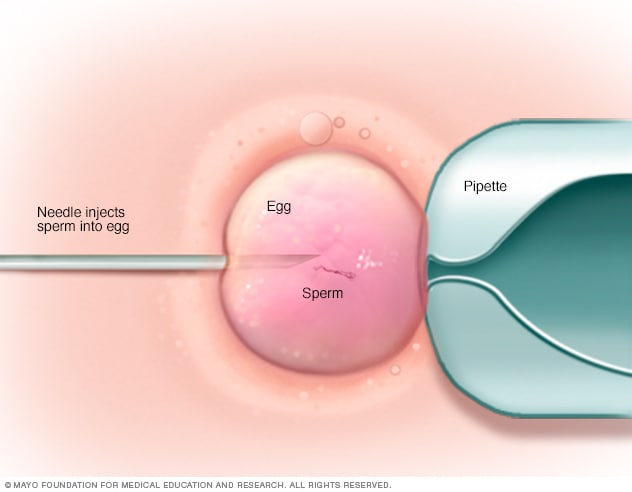 In vitro fertilization (IVF) - Mayo Clinic