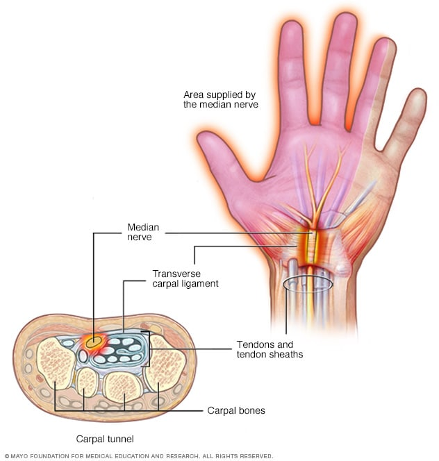 Image showing pinched nerve in wrist
