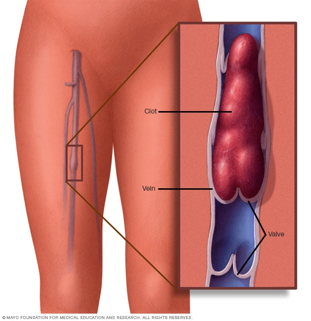 Illustration showing blood clot in leg vein