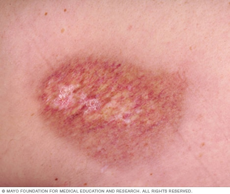 A radiation burn
