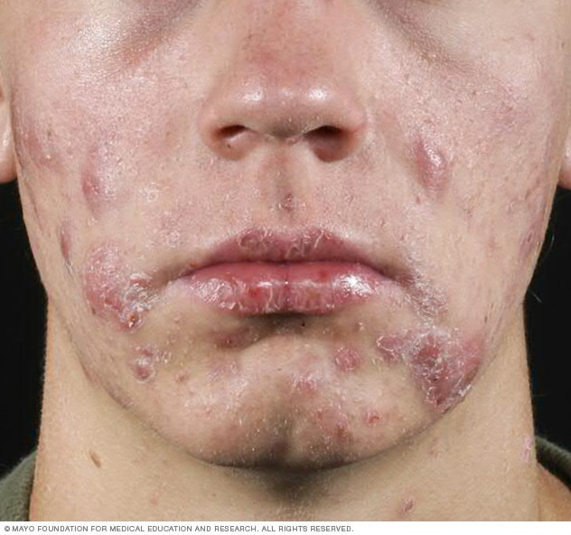 Cystic acne - Mayo Clinic