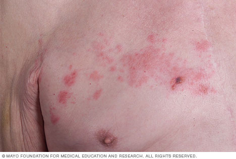 Image of shingles rash