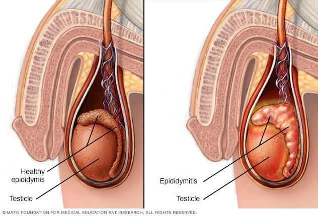 Escroto, testículo y epidídimo - Mayo Clinic