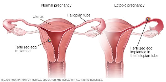Illustration of normal and ectopic pregnancy