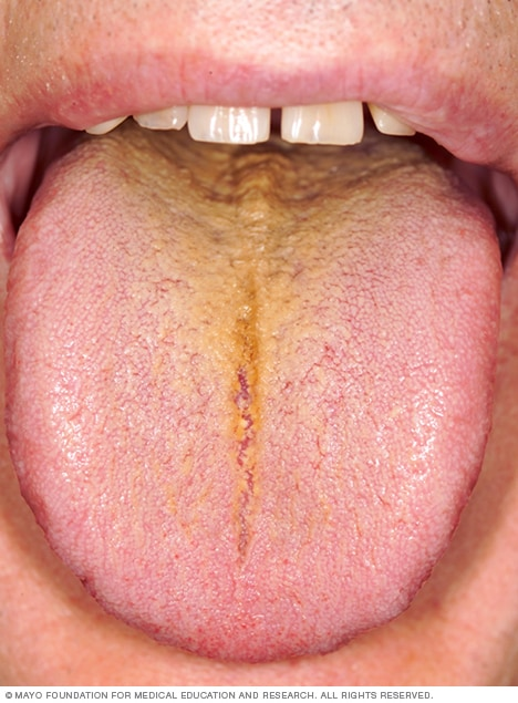Photo of a yellow tongue