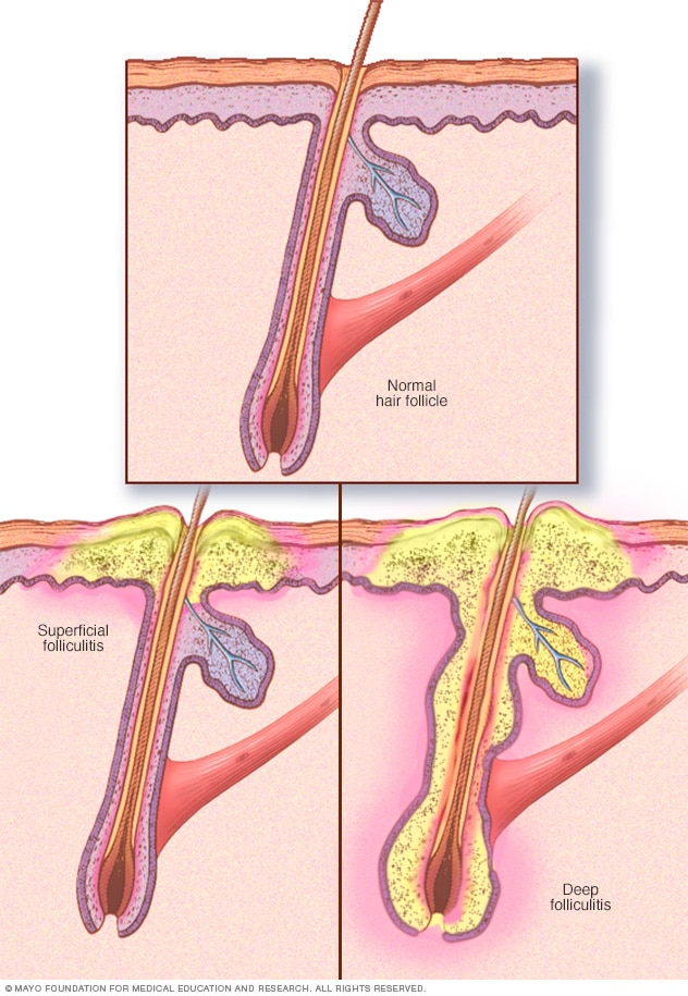 Folliculitis Symptoms And Causes Mayo Clinic