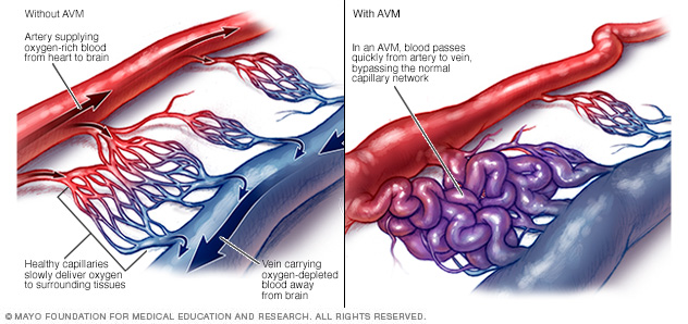 Normal and abnormal blood vessels