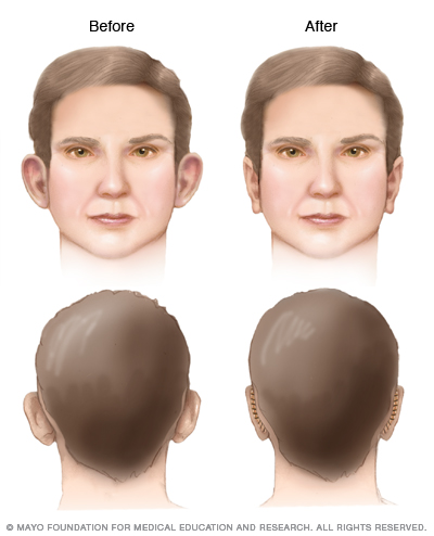 Illustration of otoplasty results