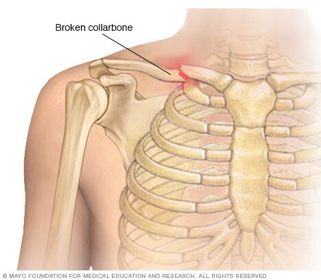Illustration showing a broken collarbone