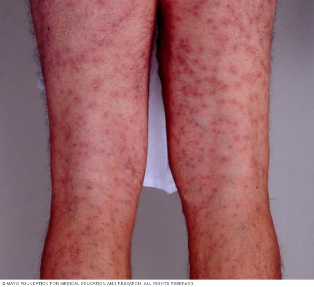 Swimmer S Itch Treatment Home Remedies
