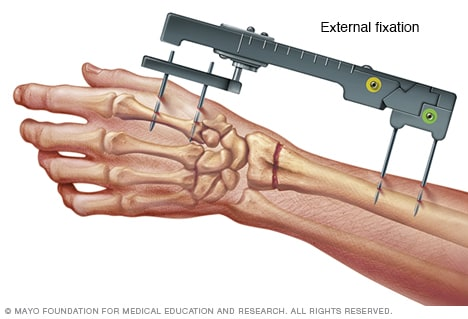 External fixation of the wrist - Mayo Clinic