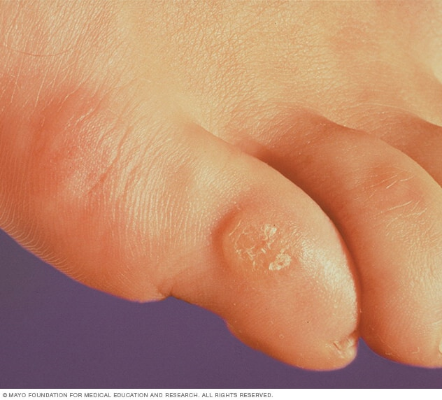 the symptoms and treatment of calluses a hardened skin condition Corns and calluses are areas of hard, thickened skin that develop when the skin  is  they can also develop as a symptom of another foot problem, such as:   over-the-counter treatments for corns, such as corn plasters, are available from.