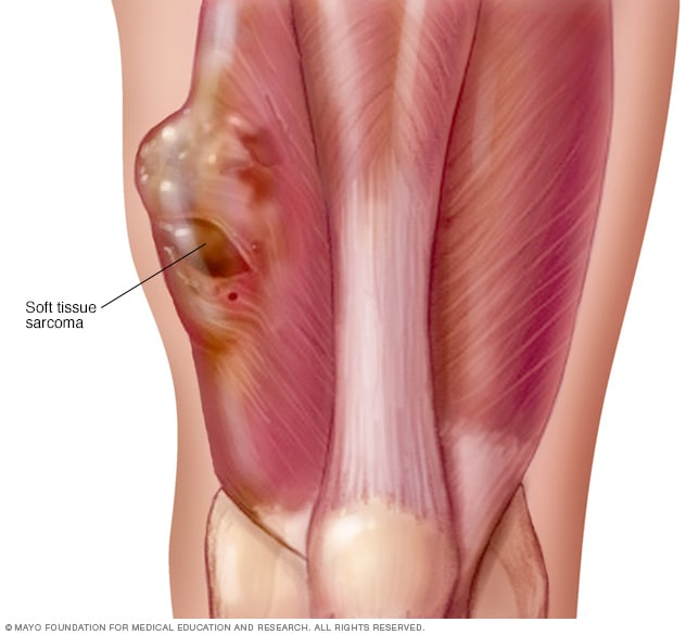 Illustration of soft tissue sarcoma