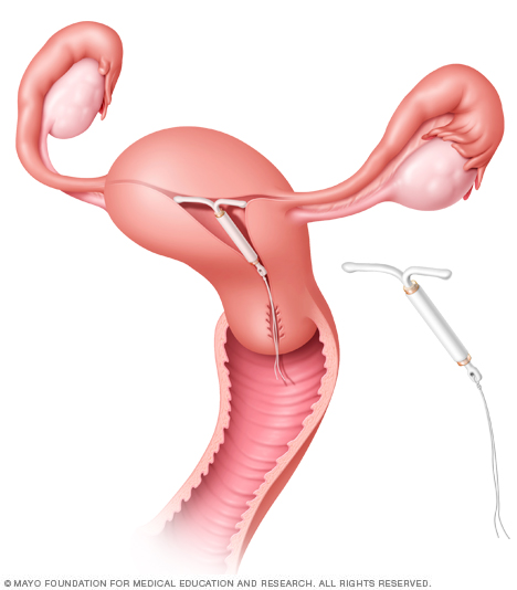 Illustration showing Mirena in place in the uterus
