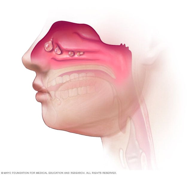 Illustration of nasal polyps in the nose and sinuses