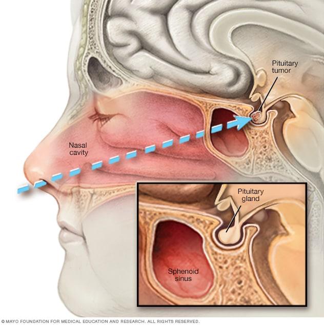 Pituitary tumors - Diagnosis and treatment - Mayo Clinic
