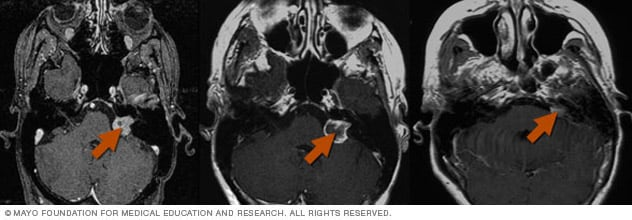 Photo showing Gamma Knife radiosurgery results