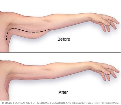 Arm Lift Mayo Clinic