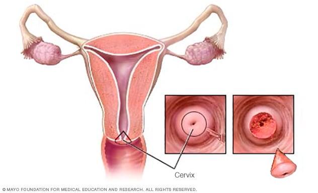 Cone Biopsy Mayo Clinic