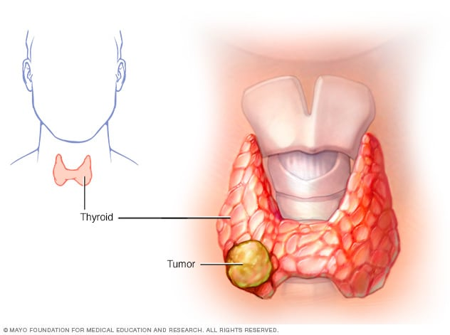 Illustration of thyroid cancer