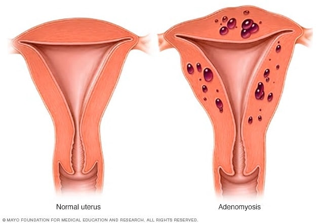 Illustration showing normal uterus vs. uterus with adenomyosis