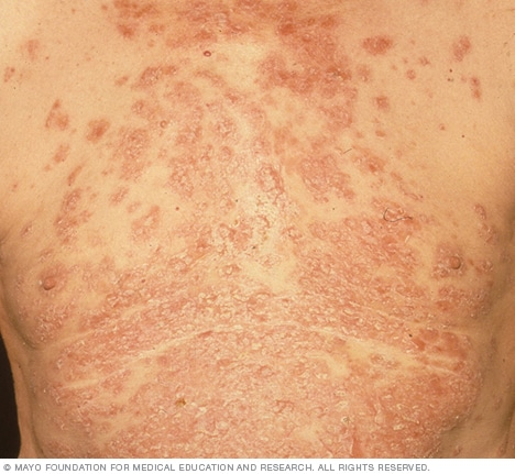 Pemphigus - Symptoms and causes - Mayo Clinic