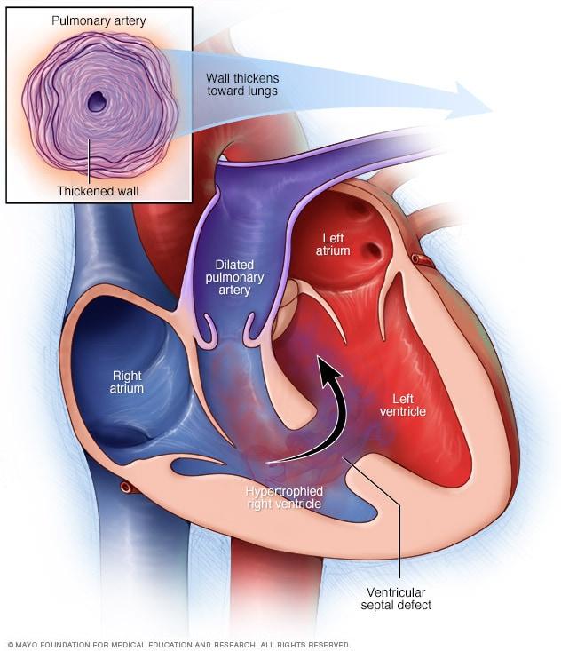 Ressonância magnética mostra problema no nervo ciático