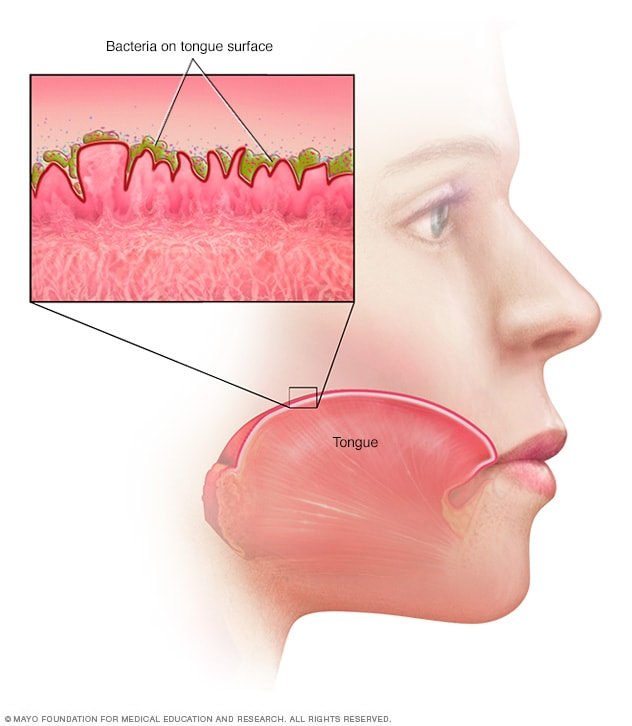 Illustration showing bacteria on the tongue surface