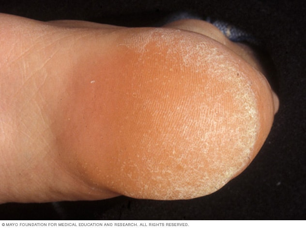 Picture of a callus