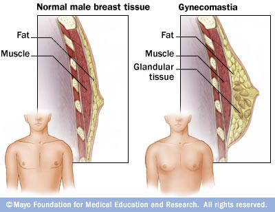 Image showing gynecomastia (enlarged breasts in men)