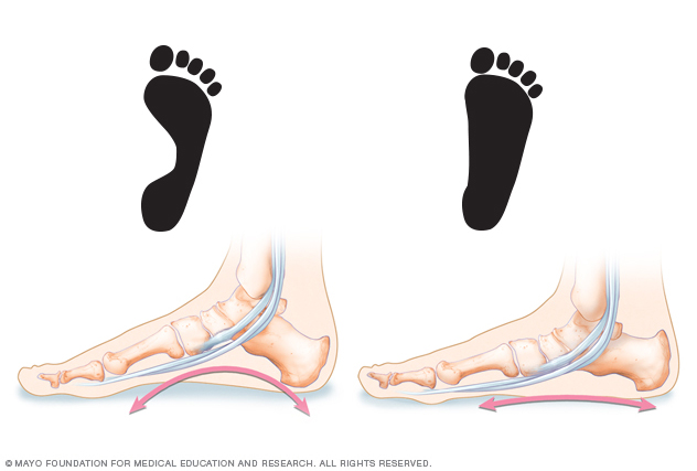 Illustration comparing normal and flatfeet footprints