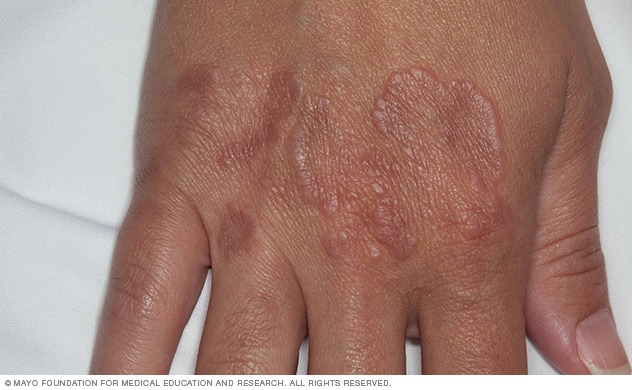 Granuloma Annulare Symptoms And Causes Mayo Clinic