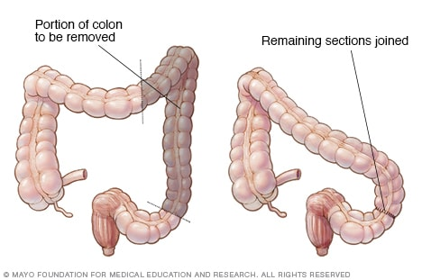 Colectomy Mayo Clinic