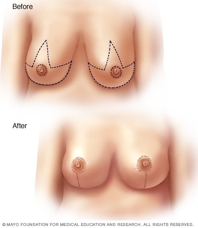 Breast lift illustration