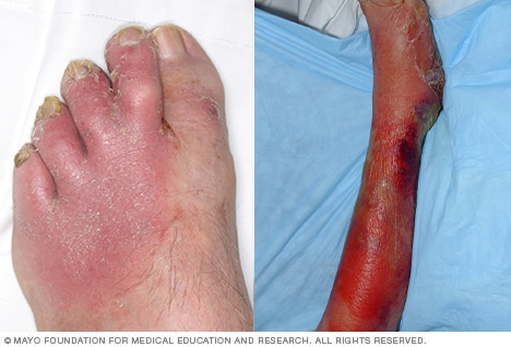 Photos of cellulitis