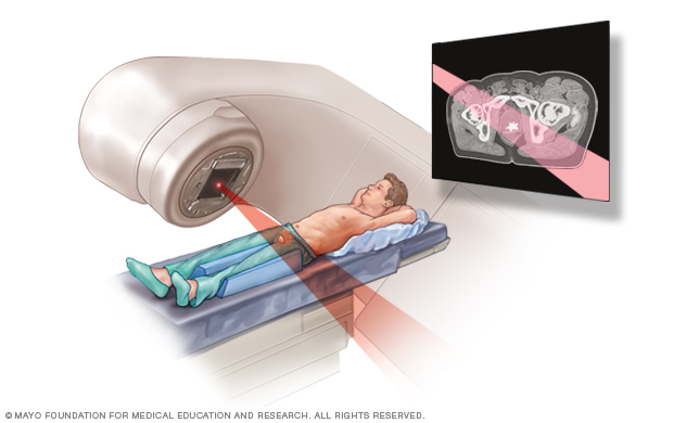 Image showing external beam radiation for prostate cancer