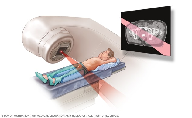 External Beam Radiation For Prostate Cancer Mayo Clinic