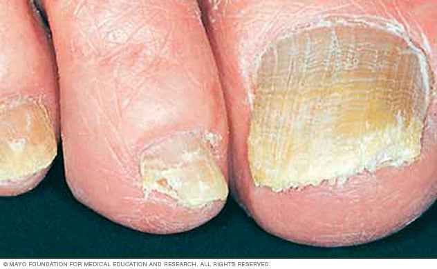 Nail fungus - Symptoms and causes - Mayo Clinic