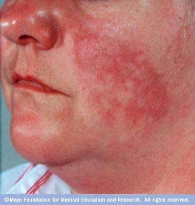 Photograph showing red, butterfly-shaped rash on nose and cheeks