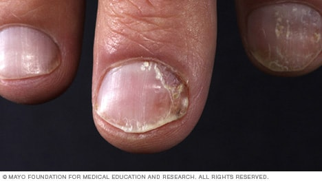 Nail Psoriasis Mayo Clinic